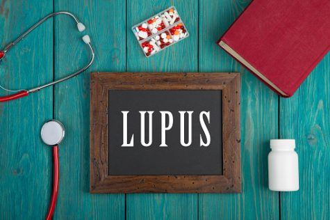 """Blackboard with text """"Lupus"""", book, pills and stethoscope on blue wooden background."""